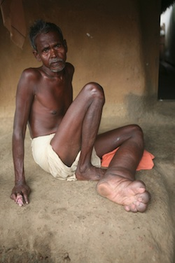 Lymphatic filariasis patient with visible enlargement of left foot, India. Photo: World Health Organization